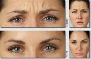 Botox in Somerset West - Before and After