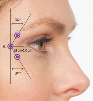 Botox Injection Sites