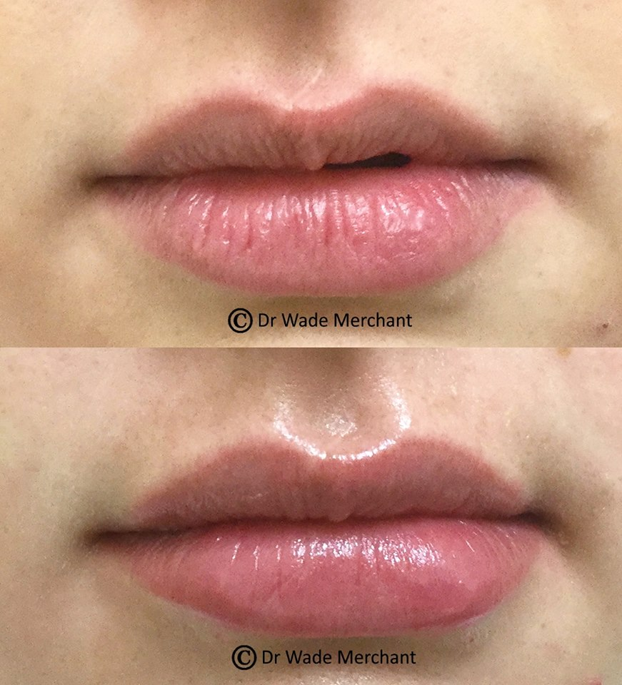 Dr Wade used Lip Fillers to correct the asymmetry in this patients lips, while adding volume to give her a natural-looking full set of lips.