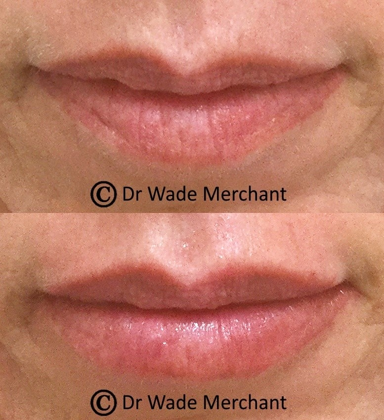 A great example of volume loss due to aging. Dr Wade used dermal fillers to restore this patients natural volume. There is something for everyone in aesthetic medicine.