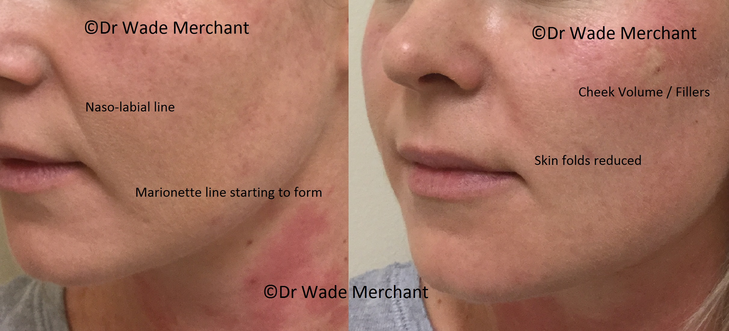 Cheek volume added, creating a subtle lift, reducing the naso-labial fold and the marionette line. Done by Dr Wade. Dermal Filler 1ml used. Cost R3,500.