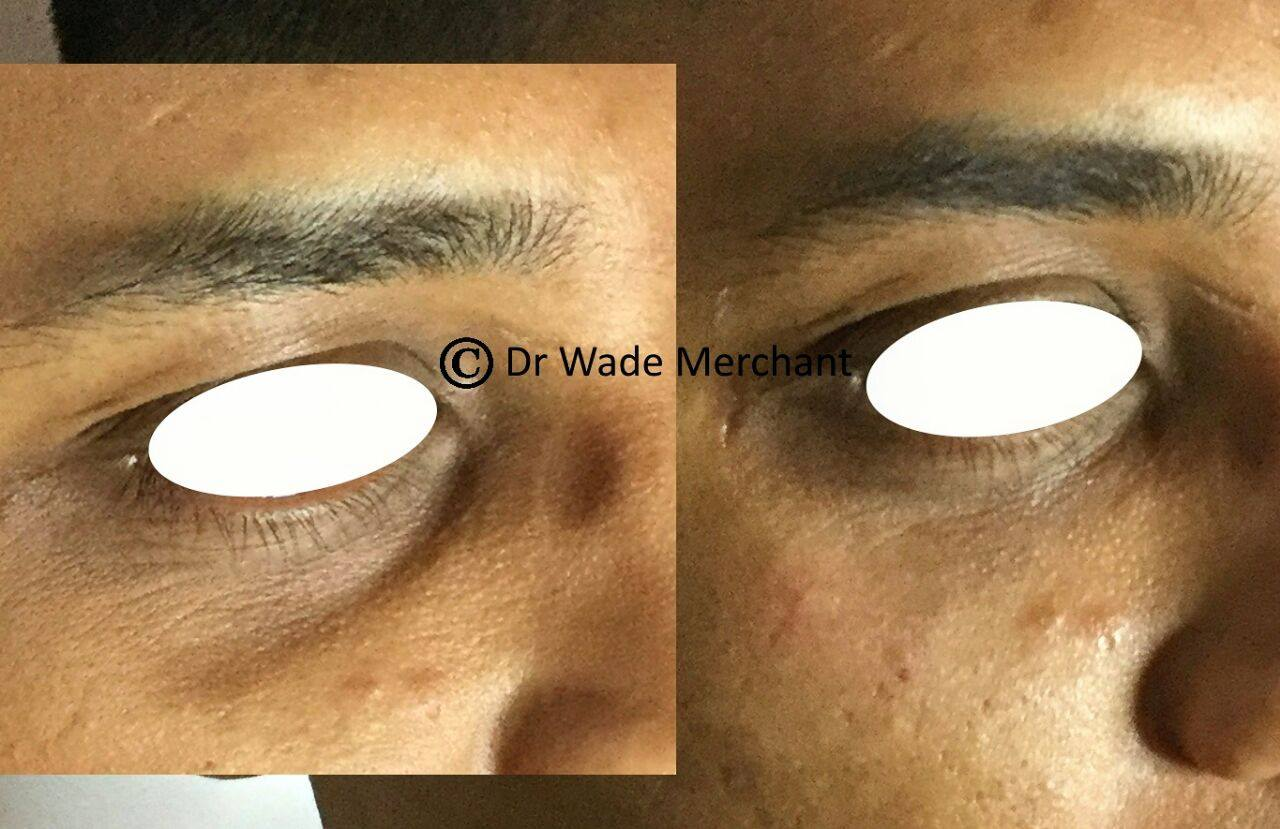 1ml (0.5ml per side) of under eye filler to replace volume loss in the tear through / under eye area. Volume beautifully restored. Done by Dr Wade Merchant.