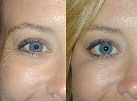 Beautiful results, eye wrinkles or crows feet treated with Botox.