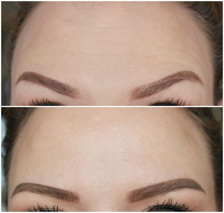 Beautiful, smooth and natural-looking results for forehead Botox treatments.