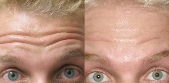 Forhead Botox in Cape Town (2)