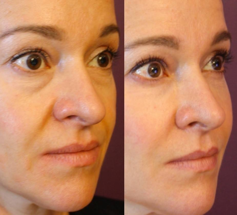 Forehead Lines Natural Treatment