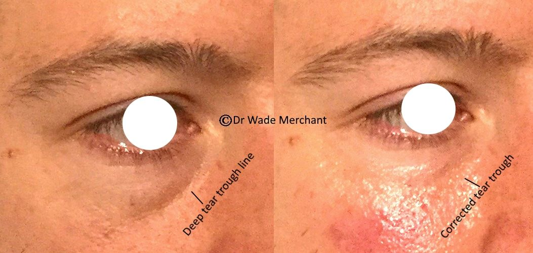 Another patient of Dr Wade. Volume restored.