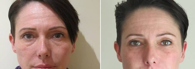 Most woman cover their deep hollows with makeup, it is not necessary. Volume loss can be treated with Dermal Fillers.