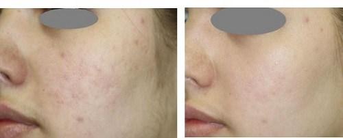 redermalization-scar-treatment