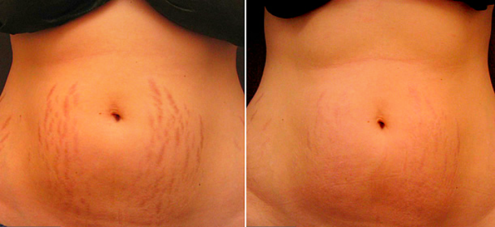 stretch-marks-before-and-after-1