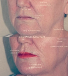"""Cheek Fillers to restore this 64 year old patient's cheek volume and cheek bone area. We also injected treated her marionette lines and the volume loss in her lips. Done in under an hour, no downtime. """"After pic"""" taken 3 days post treatment."""
