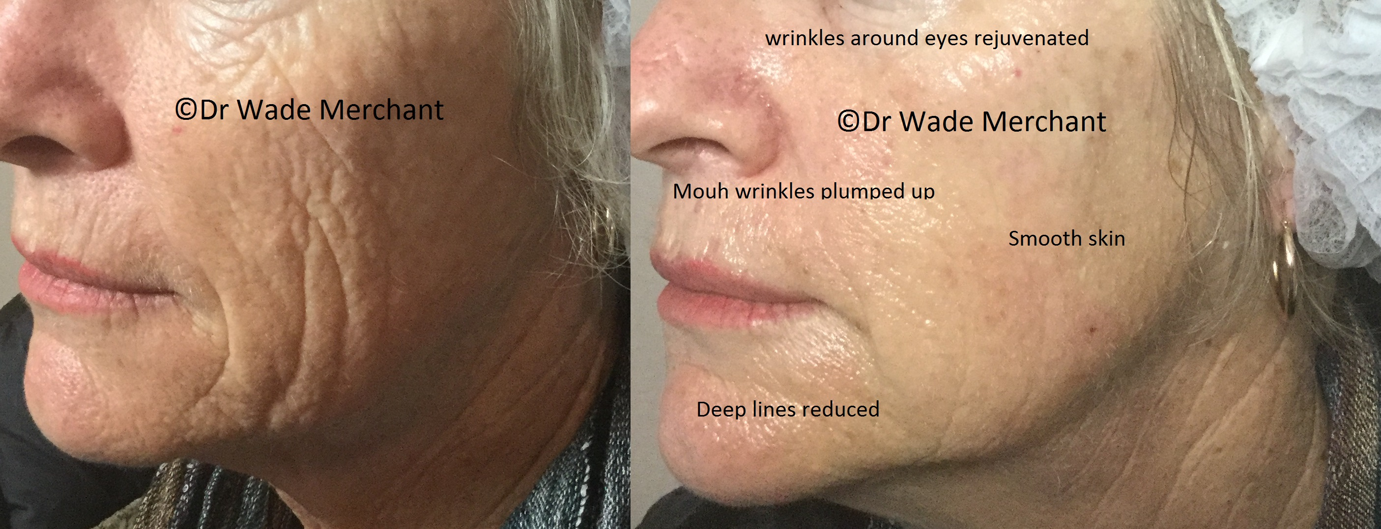 Restylane #Skinboosters used to treat the patient's wrinkles and skin folds as well as rejuvenating the patient's overall appearance. Done in under an hour, with zero to minimal downtime.