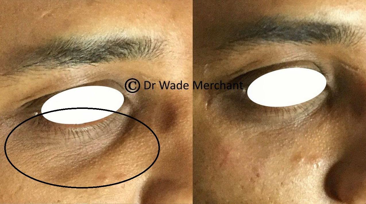 Dr-Wade-under-eye-filler