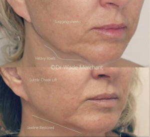 Jowls and sagging Jawline Treated with Dermal Fillers - Done by Dr Wade Merchant,
