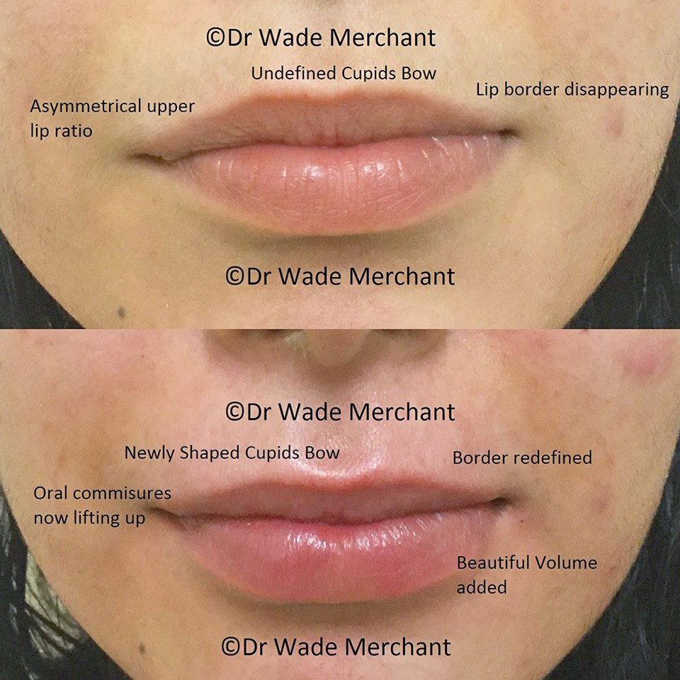 1ml Restylane Lip Fillers done by Dr Wade, 2 weeks before this patients wedding.