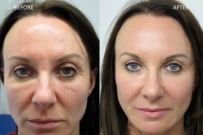 PRP Facelift - done by injecting 2ml's of fillers and then placing the PRP deep into the skin and focusing on deep lines, folds, wrinkles and hollows.