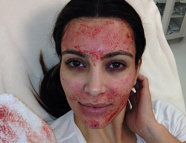 This famous selfie, made international headlines. The famous-for-being-famous star, had the Vampire Facial. PRP was needled into the skin via a micro-needling device or Dermapen.