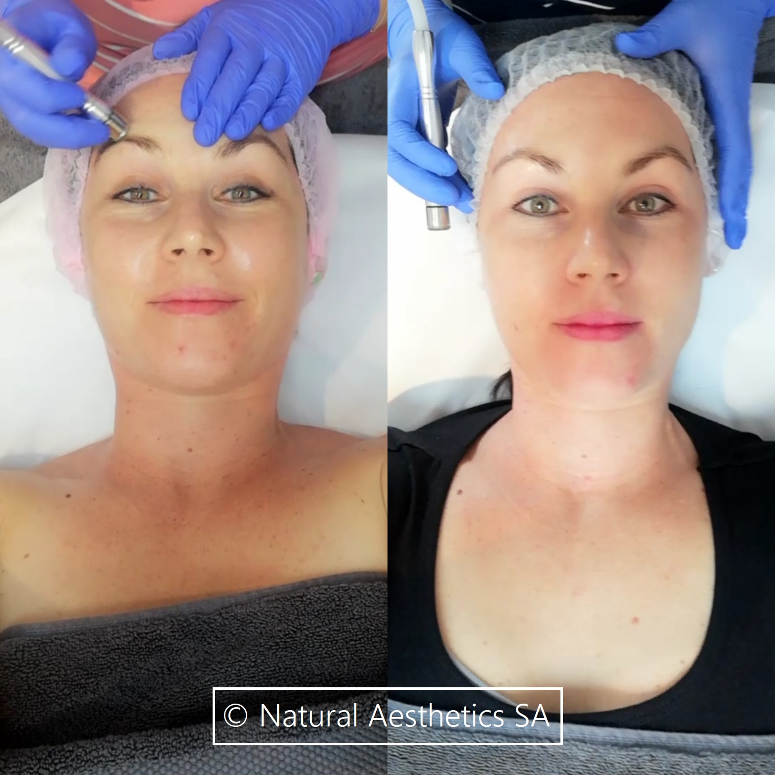 NeoStrata-retinol-peel-before-after