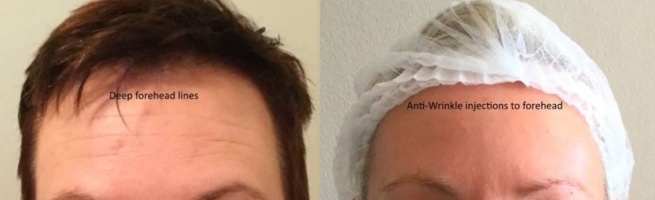 Forehead-lines-wrinkles-botox
