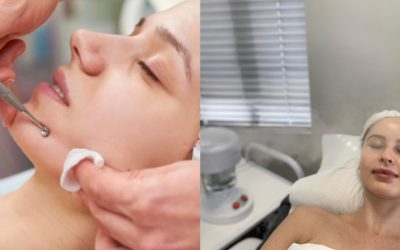 Acne Treatments – Cape Town & Somerset West