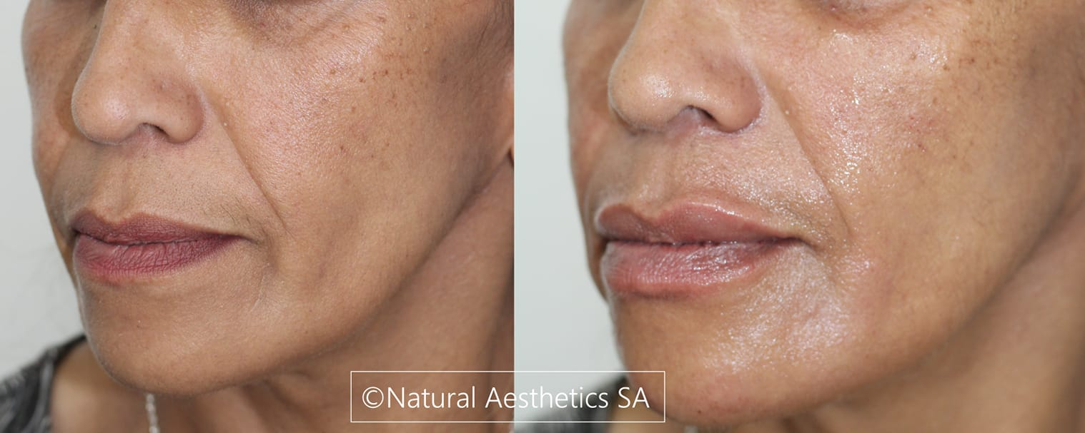 facial-filler-treatment-cape-town