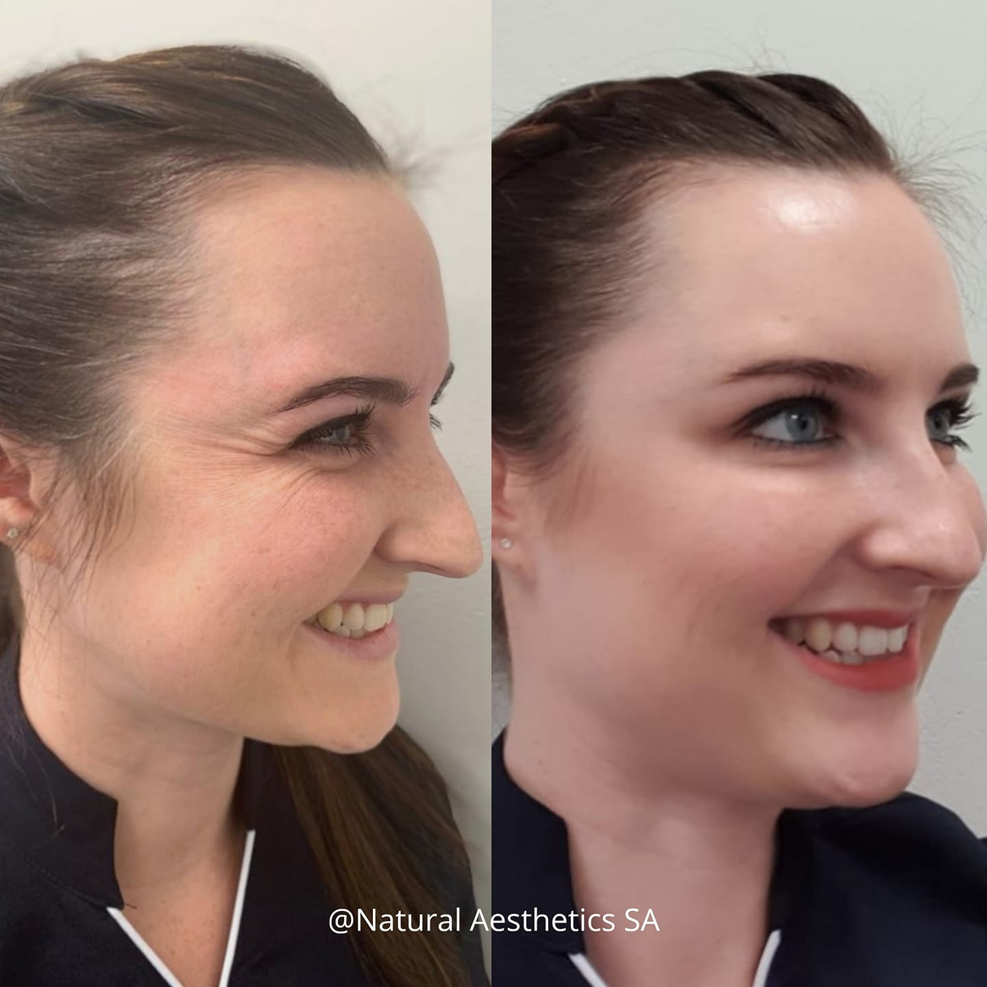 Anti-wrinkle-injections-cape-town