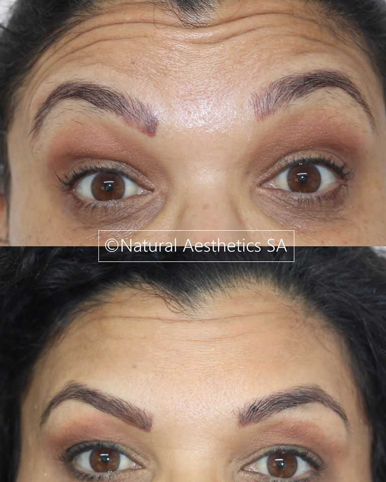 Frown-lines-botox-green-point