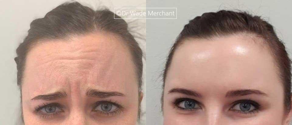 Botox frown eyes forehead