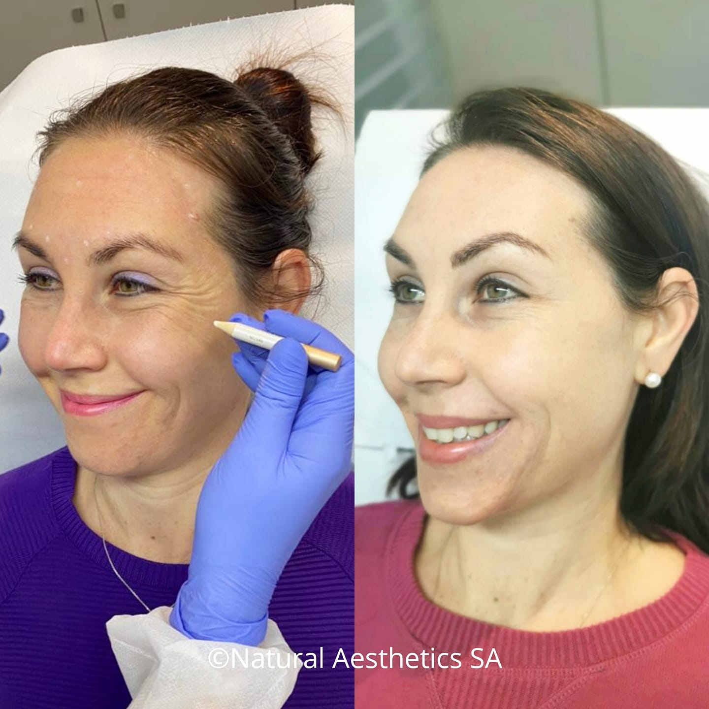 wrinkle-treatments-cape-town