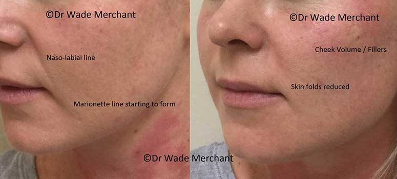 Dermal-Fillers-price-list