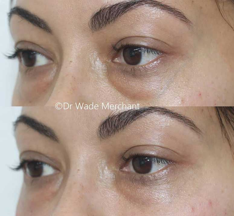 Under-eye-filler-treatment