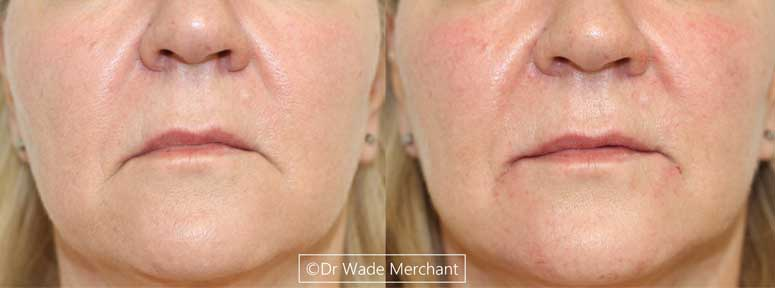 Dermal-Filler-treatment-cape-town