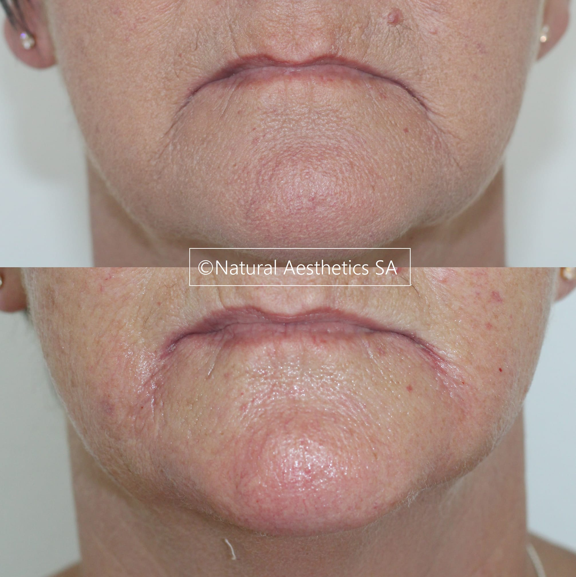 Dermal-Fillers-Somerset-West