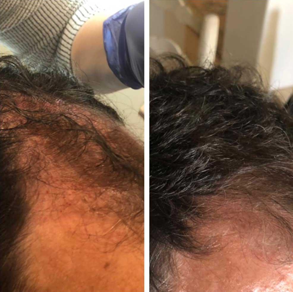 Hiar Restoration after 6 months