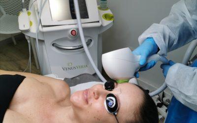 IPL Photofacials & Skin Rejuvenation Treatments