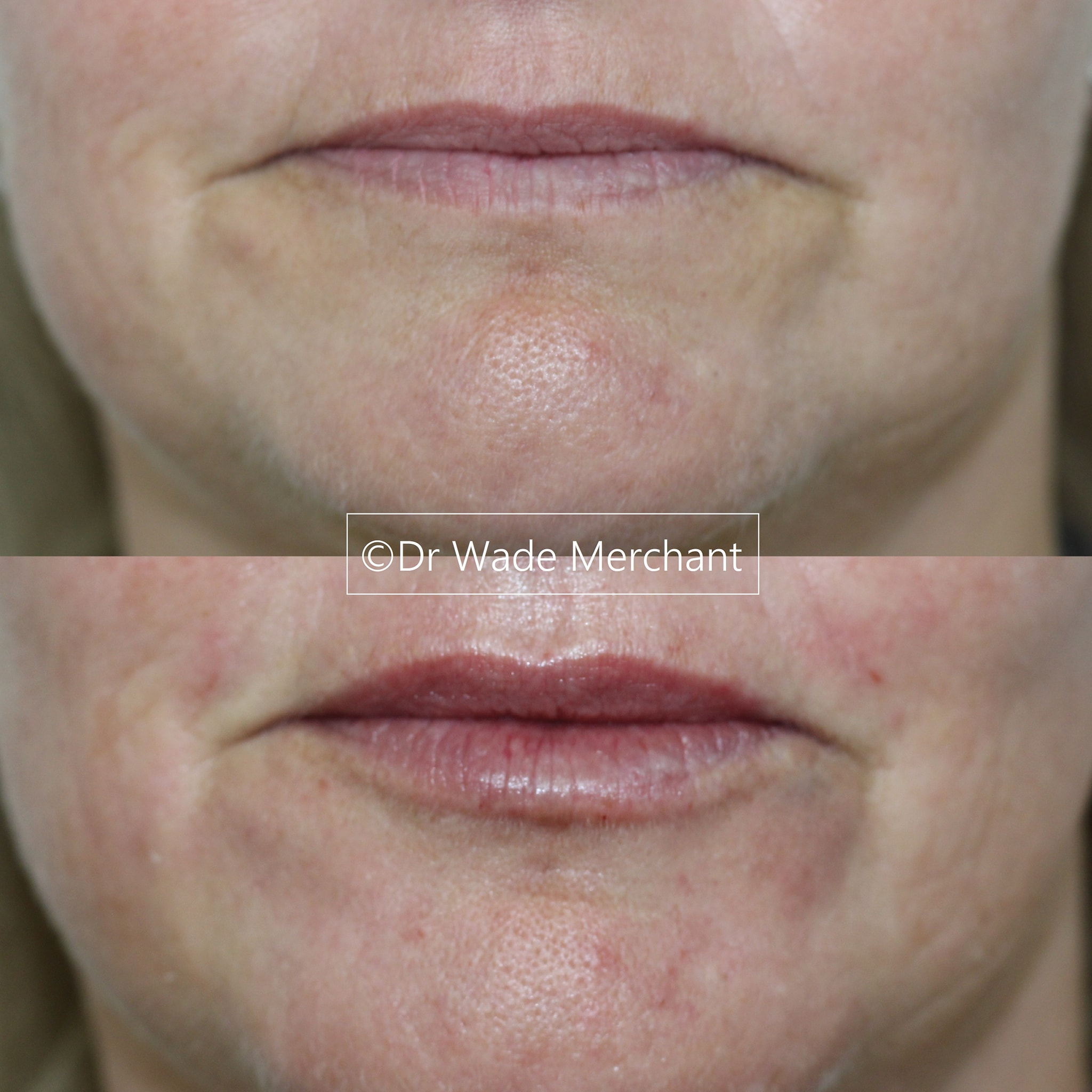 lip-fillers-sea-point