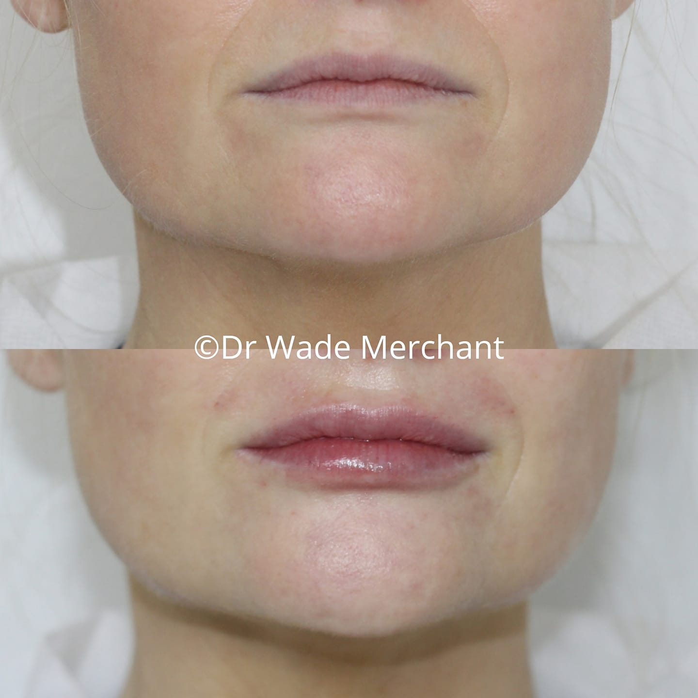 lip-fillers-dr-wade-merchant