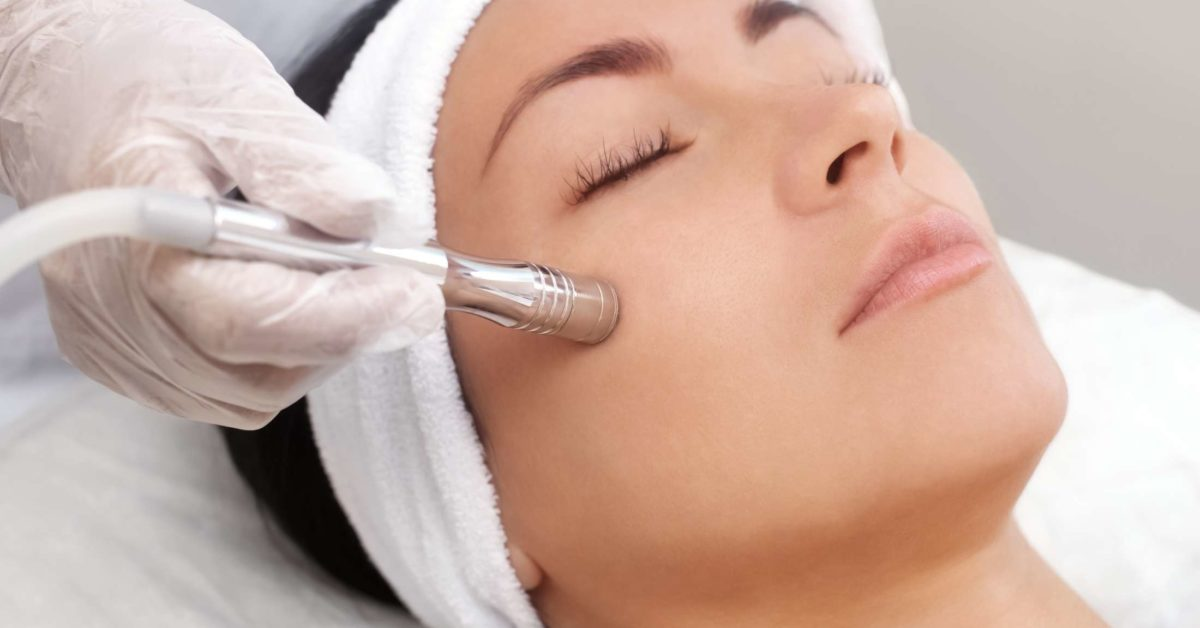 microdermabrasion-capetown