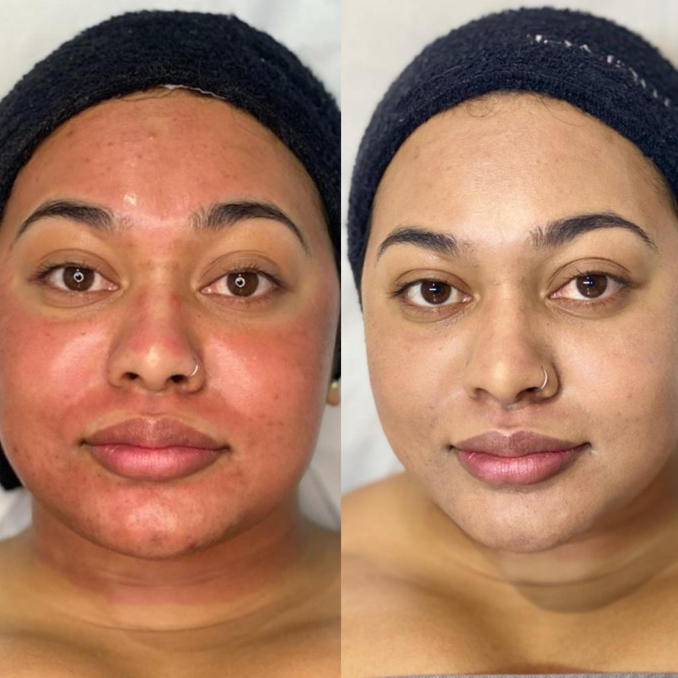 Dermapen-pigmentation