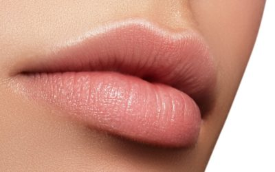 Lip Fillers in Green Point, Cape Town & Somerset West