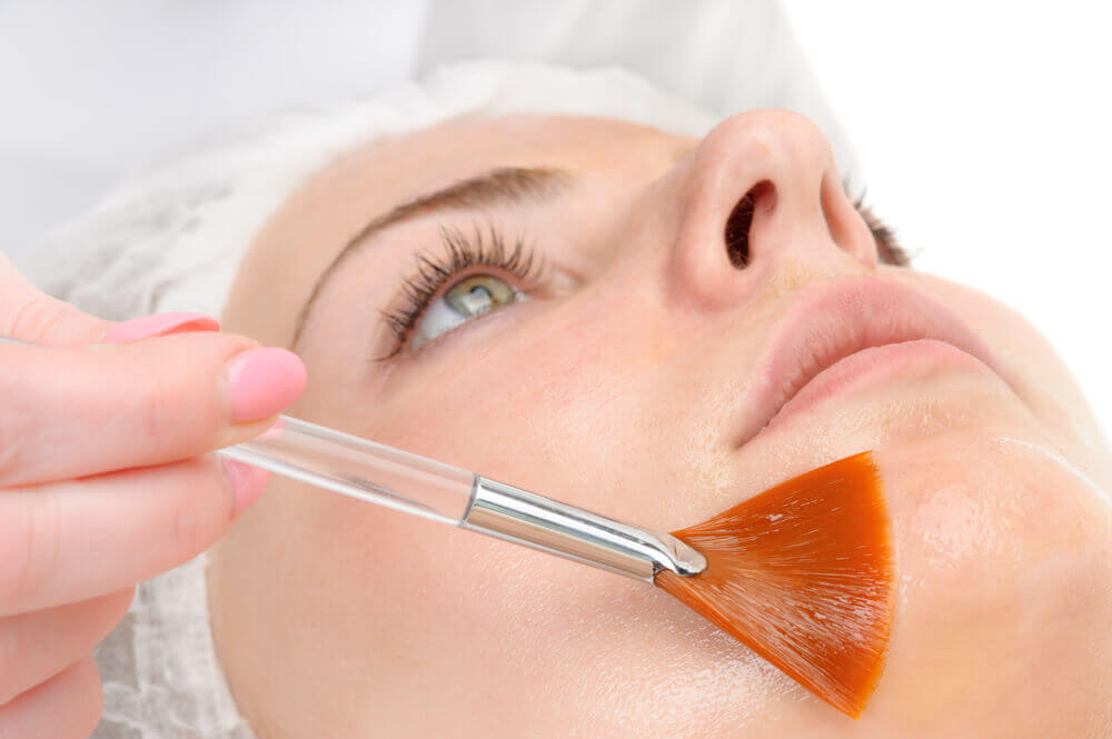 chemical-peel-somerset west