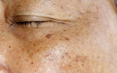 Pigmentation & Melasma Treatments Options